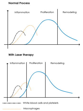 lasertherapychart